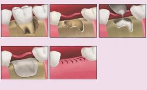 Indikacija za umjetnu kost 1