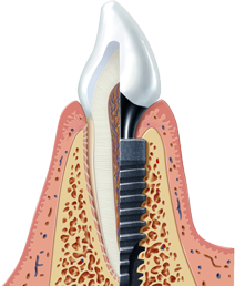 1219828-ANKYLOS-Illustration-Implant-sliced-GPM